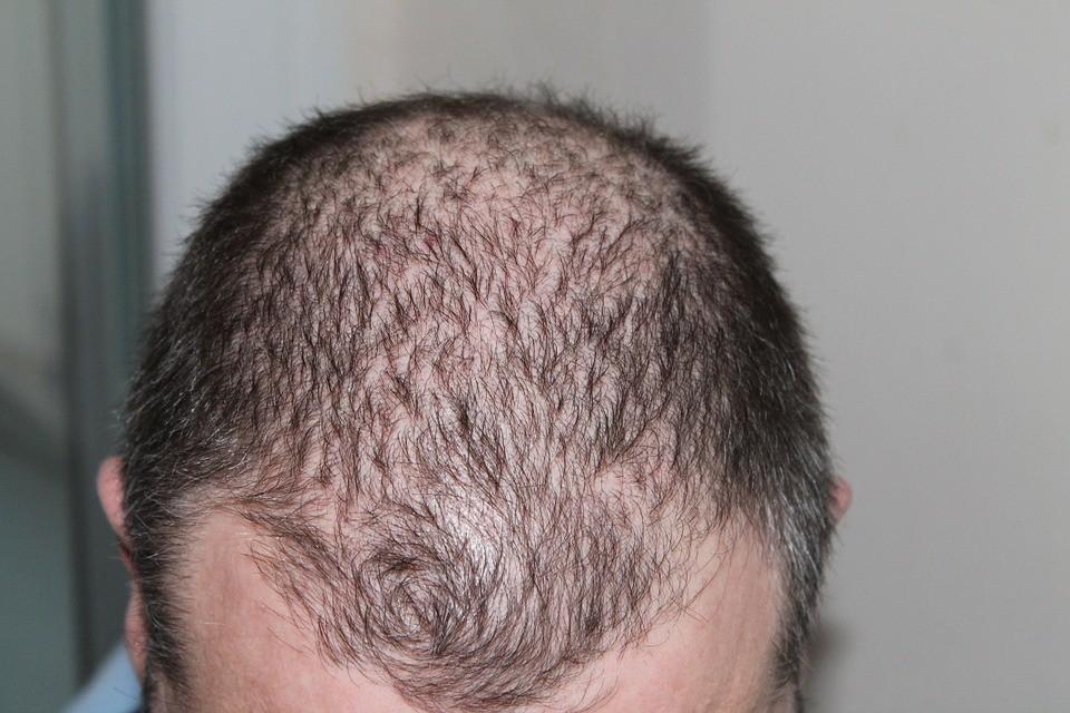 Comment lutter contre la chute de cheveux (une bataille que vous pouvez gagner)