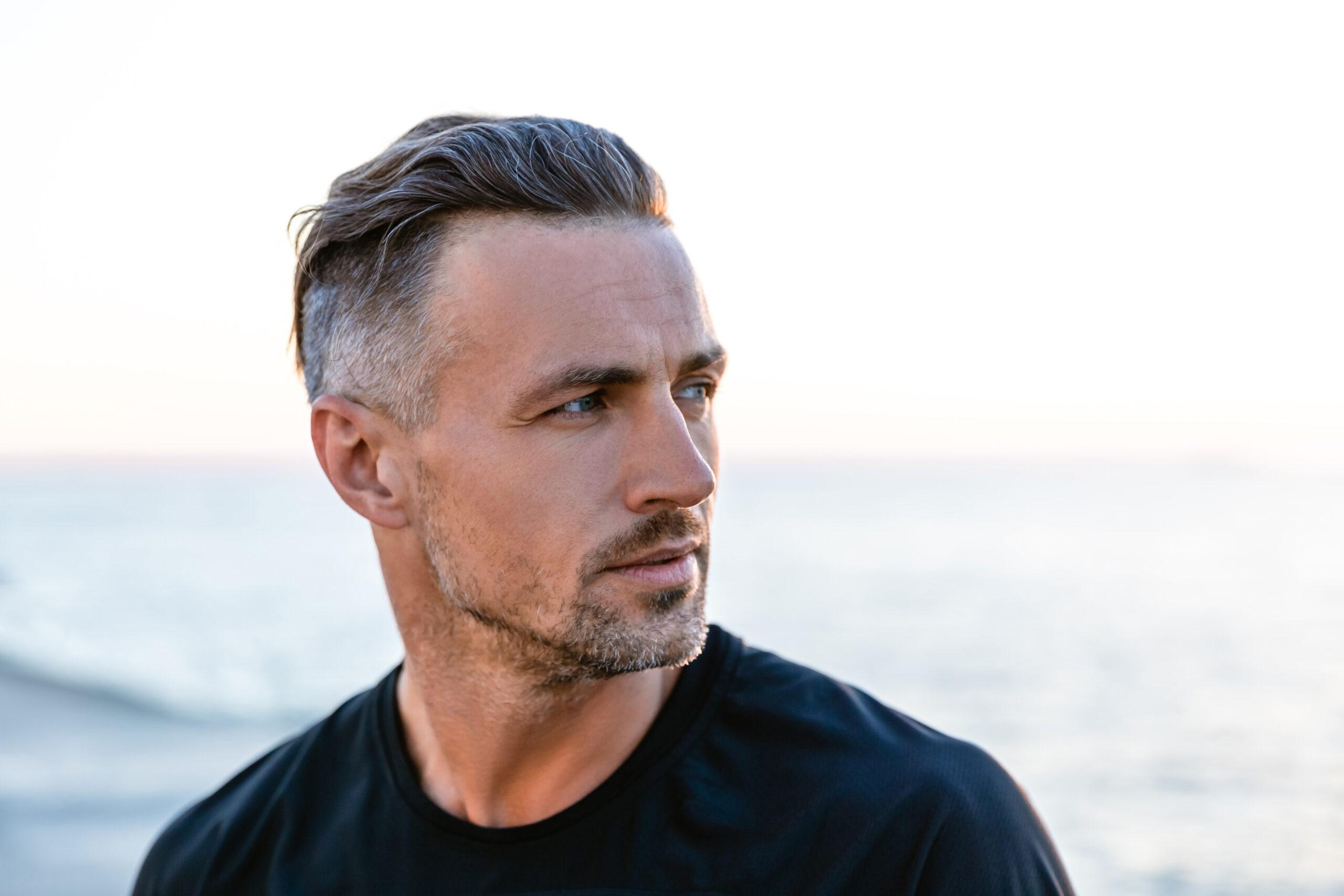 Greffe de cheveux FUE : 5 questions les plus fréquemment posées
