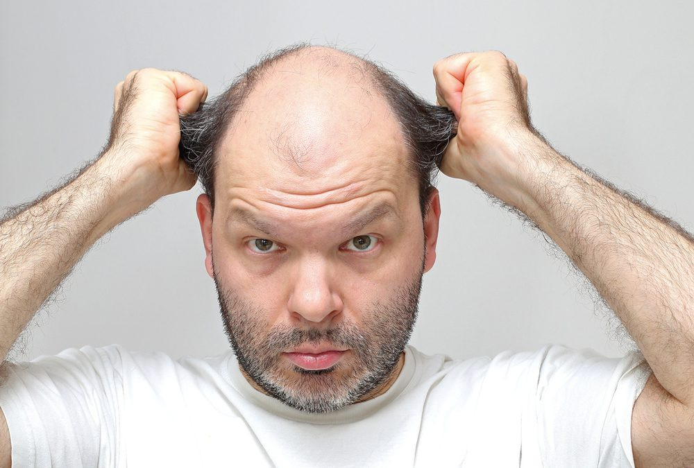 Alopecia Psicogena:  come distinguerla dalla Alopecia Androgenetica e trattamenti a supporto